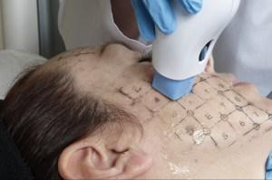 Facelift, the mini non surgical way. Our Singapore context. - Alvinology