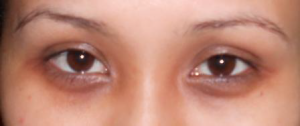 Dark eye circles – Treatment in Singapore