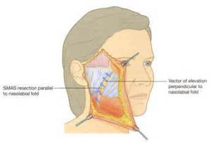 Facelift - for a firmer, tighter, more lifted you - Alvinology