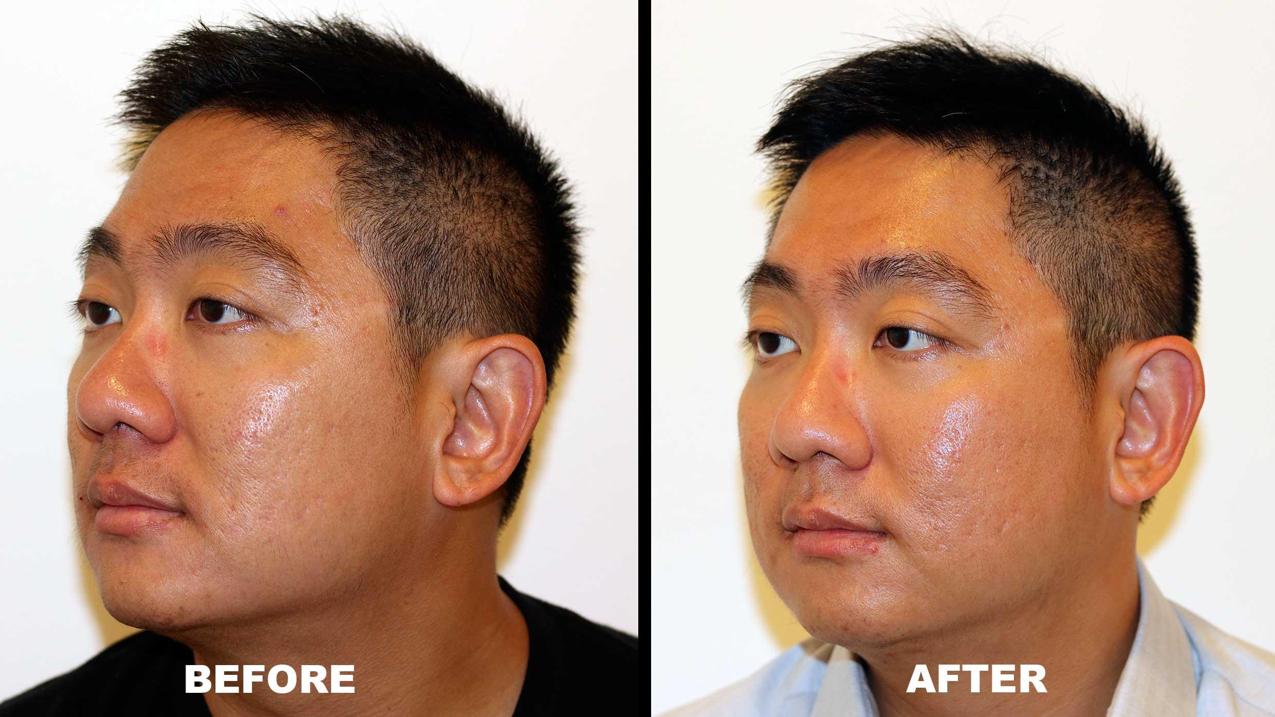 The Secret to Mark Lee's Acne Scar Treatment is Not That Secret - Alvinology